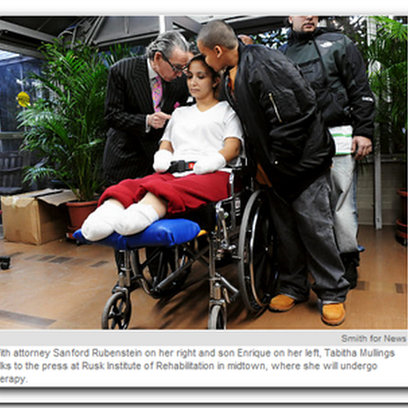 Model in Brazil loses hands and feet - Sepsis